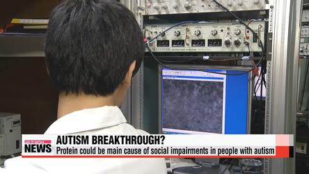 Local researchers find another piece of autism treatment puzzle